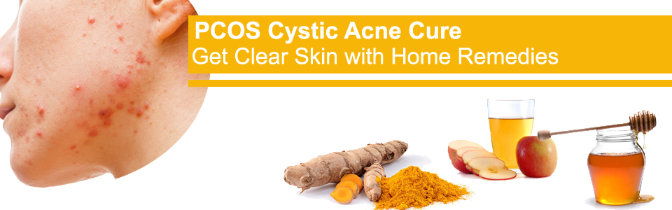 pcos related cystic acne, pcos+cystic acne on chin, does pcos cause cystic acne, pcos cystic acne treatment, cure pcos cystic acne
