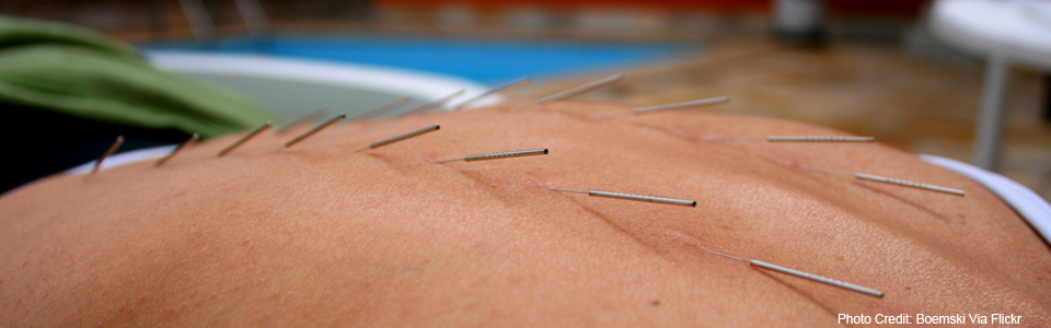 How Does Acupuncture Work For Infertility?