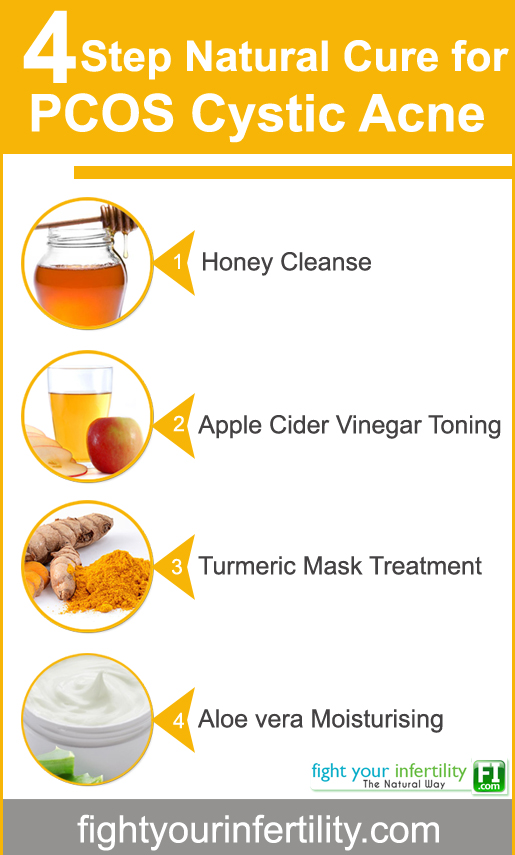 4 Step Natural Cure For PCOS Cystic Acne, natural cystic acne treatment, natural remedies for cystic acne, cystic acne home remedy, how to get rid of cystic acne home remedy, cure pcos cystic acne naturally, Tips To Cure PCOS Cystic Acne