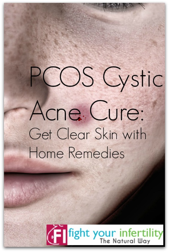 PCOS Cystic Acne Cure – Get Clear Skin with Home Remedies