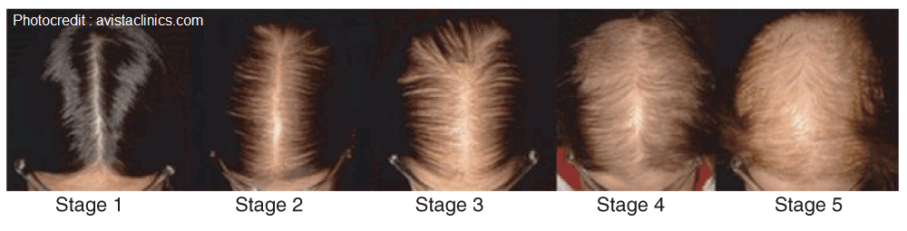 Five stages of female pattern baldness