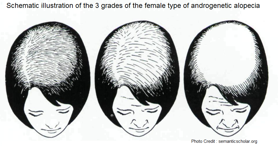 Schematic illustration of the 3 grades of the female type of androgenetic alopecia